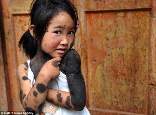 Девочка-мутант из Китая (фото)