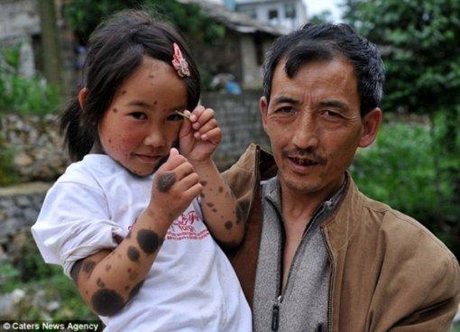 Дівчинка мутант з Китаю фото