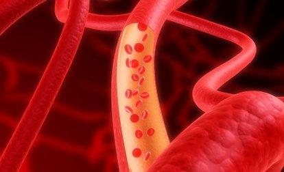 Диета при высоком гемоглобине