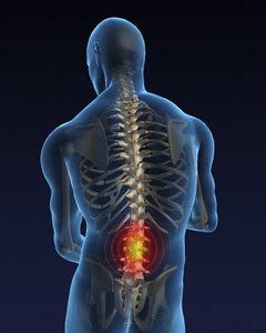 osteohondroz-poperekovo-krizhovogo-vddlu-hrebta-lkuvannya-simptomi-prichini-foto_341